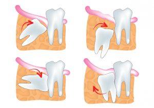 impacted-wisdom-teeth_monterey-dental-contours